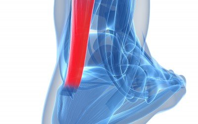 Achilles Tendonitis/ Tendonopathy Facts and Advice